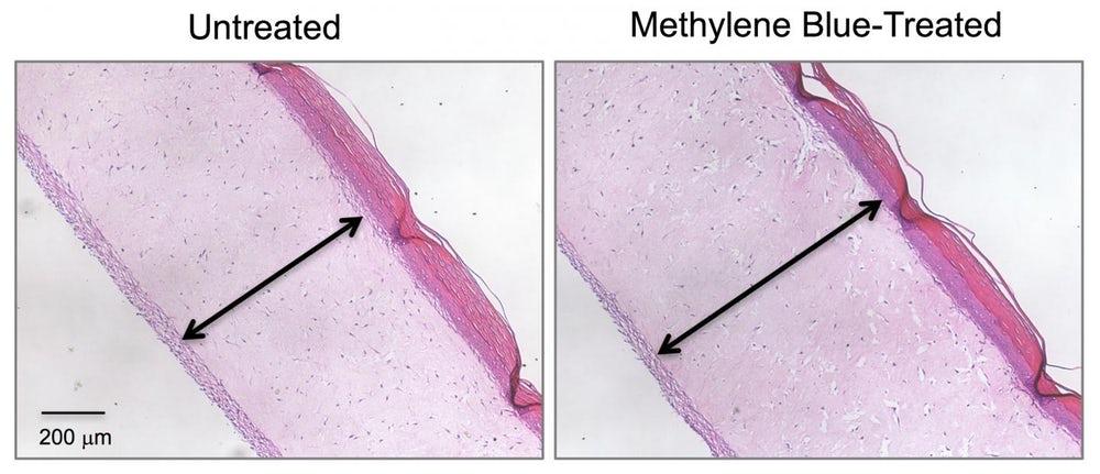 Метиленовото синьо с удивителен резултат в борбата с бръчките? Oxidal прудукт с метиленово синьо против бръчки